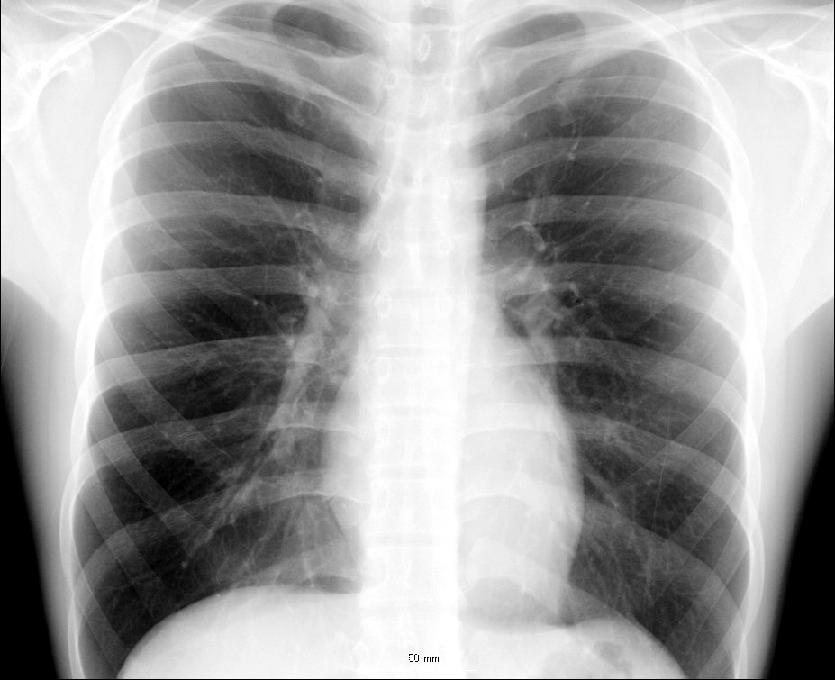 X-ray of a chest